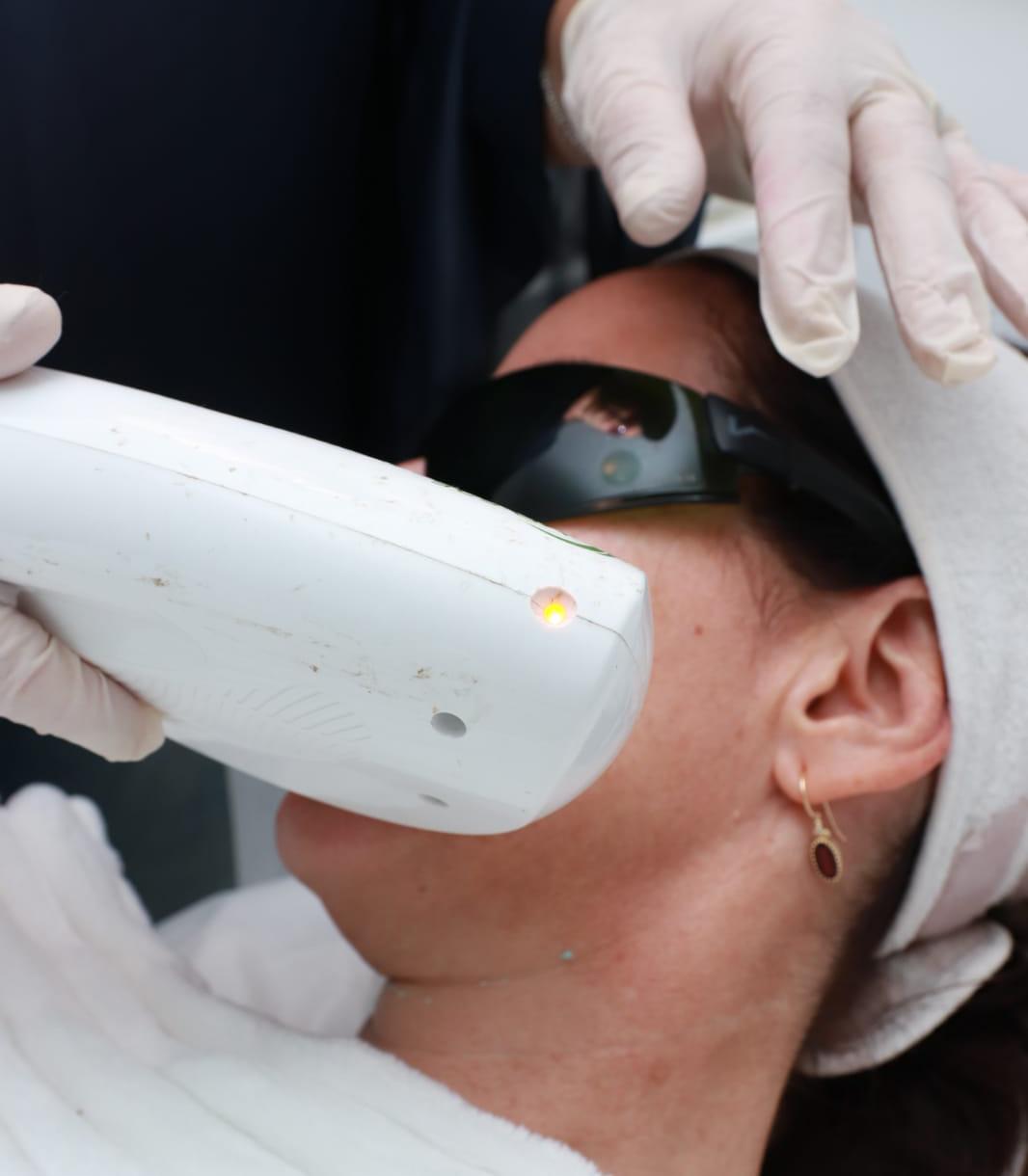 טכנולוגיית האור שמצליחה להסיר שיער פנים ומשיגה לבנות בישראל יופי אירופאי